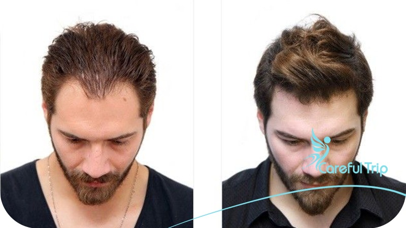 hair implanted